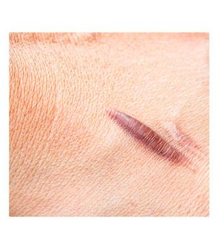 Die Behandlung von Narben ist mit Cortison möglich.
